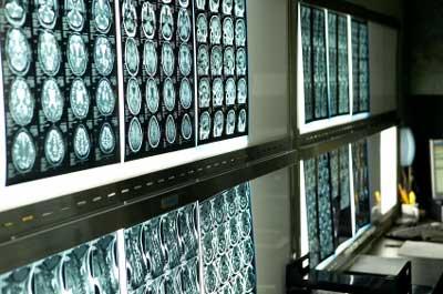 Gehirn durch Chemikalien geschädigt