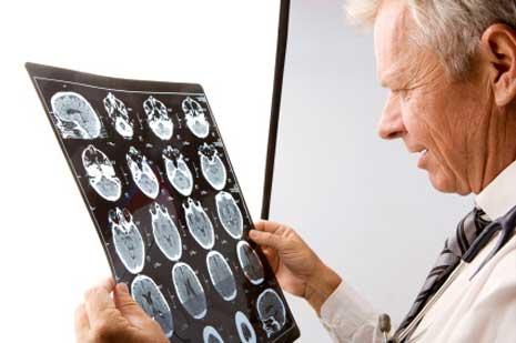 SPECT und PET -Scan häufig auffällig bei MCS Patienten